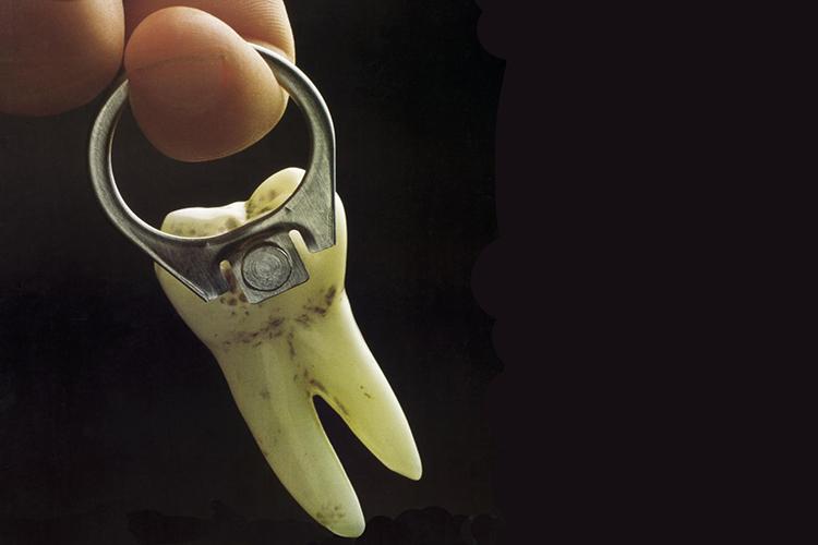 dente sporco attaccato alla linguetta di una lattina